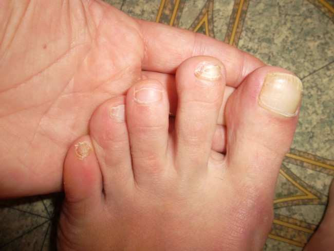 Грибок на ногтях ног.